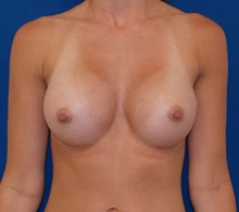Breast Augmentation After Photo by Navin Singh, MD; McLean, VA - Case 40705