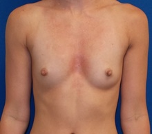 Breast Augmentation Before Photo by Navin Singh, MD; McLean, VA - Case 40705
