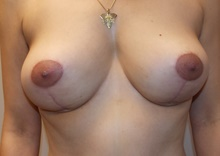 Breast Lift After Photo by Navin Singh, MD; McLean, VA - Case 40707