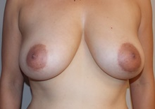 Breast Lift Before Photo by Navin Singh, MD; McLean, VA - Case 40707