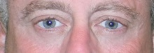 Eyelid Surgery After Photo by Navin Singh, MD; McLean, VA - Case 40708