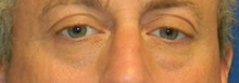 Eyelid Surgery Before Photo by Navin Singh, MD; McLean, VA - Case 40708