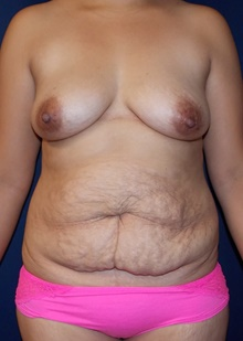 Tummy Tuck Before Photo by Navin Singh, MD; McLean, VA - Case 40709
