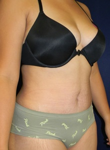Tummy Tuck After Photo by Navin Singh, MD; McLean, VA - Case 40709