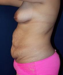 Tummy Tuck Before Photo by Navin Singh, MD; McLean, VA - Case 40709