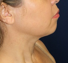 Liposuction After Photo by Navin Singh, MD; McLean, VA - Case 40710