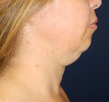 Liposuction Before Photo by Navin Singh, MD; McLean, VA - Case 40710