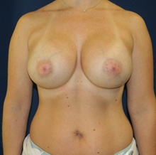Breast Augmentation After Photo by Navin Singh, MD; McLean, VA - Case 41324