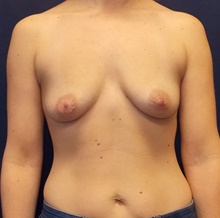 Breast Augmentation Before Photo by Navin Singh, MD; McLean, VA - Case 41324