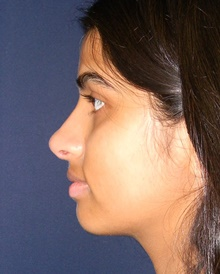 Rhinoplasty After Photo by Navin Singh, MD; McLean, VA - Case 42041