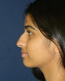 Rhinoplasty Before Photo by Navin Singh, MD; McLean, VA - Case 42041