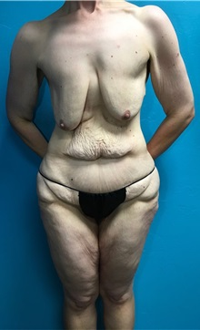 Body Contouring Before Photo by Anureet Bajaj, MD; Oklahoma City, OK - Case 31423