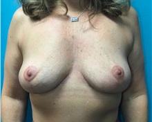 Breast Lift After Photo by Anureet Bajaj, MD; Oklahoma City, OK - Case 31425