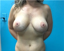 Breast Lift Before Photo by Anureet Bajaj, MD; Oklahoma City, OK - Case 31425