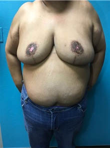 Breast Reduction After Photo by Anureet Bajaj, MD; Oklahoma City, OK - Case 31426