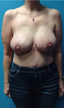 Breast Reconstruction After Photo by Anureet Bajaj, MD; Oklahoma City, OK - Case 31652
