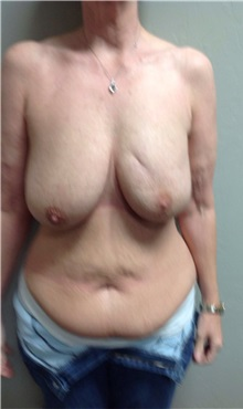Breast Reconstruction Before Photo by Anureet Bajaj, MD; Oklahoma City, OK - Case 31652