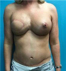 Breast Reconstruction After Photo by Anureet Bajaj, MD; Oklahoma City, OK - Case 31696