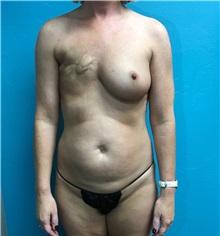 Breast Reconstruction Before Photo by Anureet Bajaj, MD; Oklahoma City, OK - Case 31696