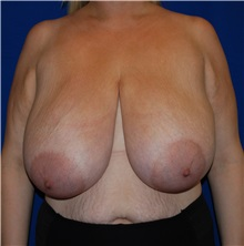 Breast Reduction Before Photo by Robert Kessler, MD; Corona Del Mar, CA - Case 35793
