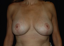 Breast Lift After Photo by Robert Kessler, MD; Corona Del Mar, CA - Case 35797