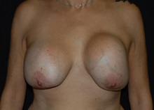 Breast Lift Before Photo by Robert Kessler, MD; Corona Del Mar, CA - Case 35797