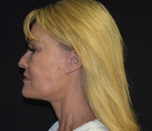 Facelift After Photo by Robert Kessler, MD; Corona Del Mar, CA - Case 36213