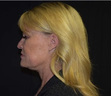 Facelift Before Photo by Robert Kessler, MD; Corona Del Mar, CA - Case 36213