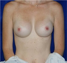 Breast Augmentation After Photo by Daniel Medalie, MD; Beachwood, OH - Case 31457