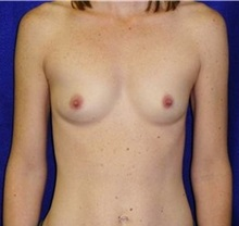 Breast Augmentation Before Photo by Daniel Medalie, MD; Beachwood, OH - Case 31457