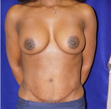Tummy Tuck After Photo by Daniel Medalie, MD; Beachwood, OH - Case 31458
