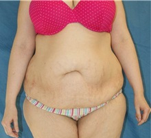 Tummy Tuck Before Photo by Daniel Medalie, MD; Beachwood, OH - Case 31460