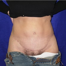 Tummy Tuck After Photo by Daniel Medalie, MD; Beachwood, OH - Case 31461