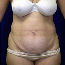 Tummy Tuck Before Photo by Daniel Medalie, MD; Beachwood, OH - Case 31461