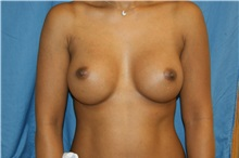 Breast Augmentation After Photo by Daniel Medalie, MD; Beachwood, OH - Case 31462