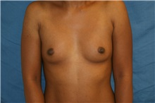 Breast Augmentation Before Photo by Daniel Medalie, MD; Beachwood, OH - Case 31462