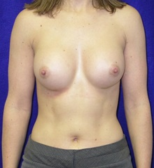 Breast Augmentation After Photo by Daniel Medalie, MD; Beachwood, OH - Case 31897