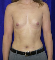 Breast Augmentation Before Photo by Daniel Medalie, MD; Beachwood, OH - Case 31897
