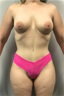 Tummy Tuck After Photo by Daniel Medalie, MD; Beachwood, OH - Case 31898