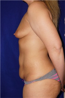 Tummy Tuck Before Photo by Daniel Medalie, MD; Beachwood, OH - Case 31898