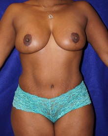Tummy Tuck After Photo by Daniel Medalie, MD; Beachwood, OH - Case 31899