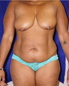 Tummy Tuck Before Photo by Daniel Medalie, MD; Beachwood, OH - Case 31899