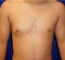 Male Breast Reduction Before Photo by Daniel Medalie, MD; Beachwood, OH - Case 31900