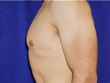 Male Breast Reduction After Photo by Daniel Medalie, MD; Beachwood, OH - Case 31901
