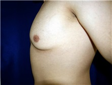Male Breast Reduction Before Photo by Daniel Medalie, MD; Beachwood, OH - Case 31901