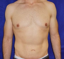 Male Breast Reduction After Photo by Daniel Medalie, MD; Beachwood, OH - Case 31902