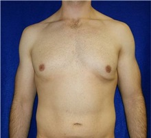 Male Breast Reduction Before Photo by Daniel Medalie, MD; Beachwood, OH - Case 31902