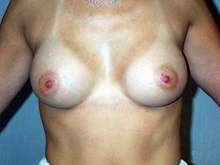 Breast Augmentation After Photo by Daniel Medalie, MD; Beachwood, OH - Case 3398