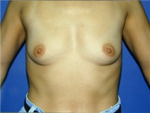 Breast Augmentation Before Photo by Daniel Medalie, MD; Beachwood, OH - Case 3398