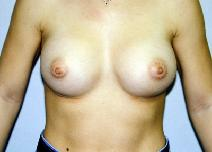 Breast Augmentation After Photo by Daniel Medalie, MD; Beachwood, OH - Case 3418